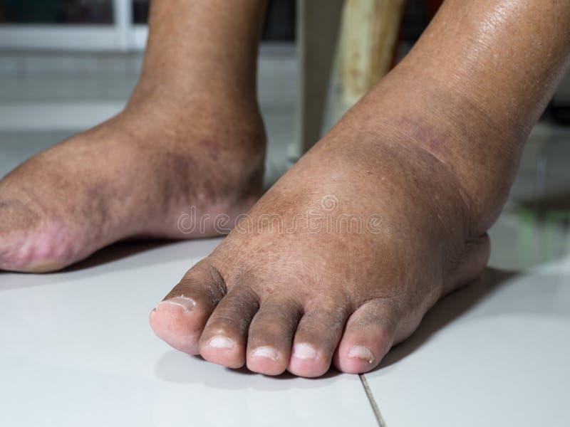 Die Füße Leute mit Diabetes, stumpf und geschwollen Wegen der Giftigkeit von Diabetes gesetzt auf einen weißen Hintergrund lizenzfreies stockfoto