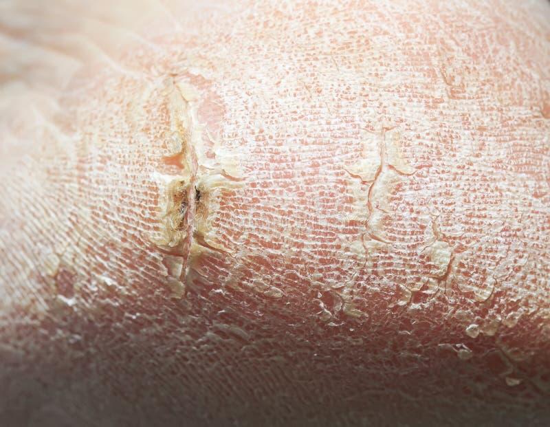 Die Ferse der Frauen mit gebrochener Haut mit tiefen Wunden und abblätternden Clo stockfotos
