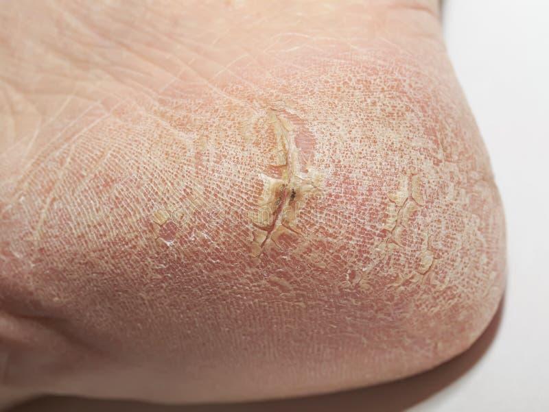 Die Ferse der unordentlichen Frauen mit gebrochener Haut mit tiefen Wunden und flaki lizenzfreie stockbilder