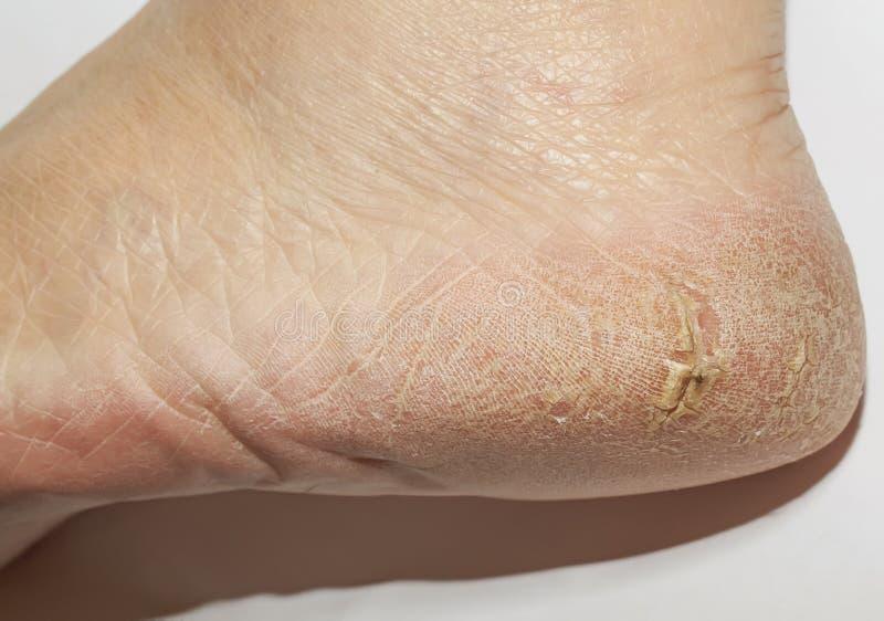 Die Ferse der unordentlichen Frauen mit gebrochener Haut mit tiefen Wunden und flaki lizenzfreies stockfoto