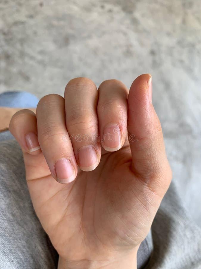 Die Hand der Frau sind trocken, der Nagelrand ist flockig, sollte an der Creme, Allergie der trockenen Haut angewendet werden lizenzfreies stockfoto