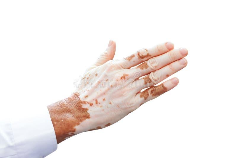 Die Hand des Mannes mit mit Vitiligo auf weißem Hintergrund stockbild