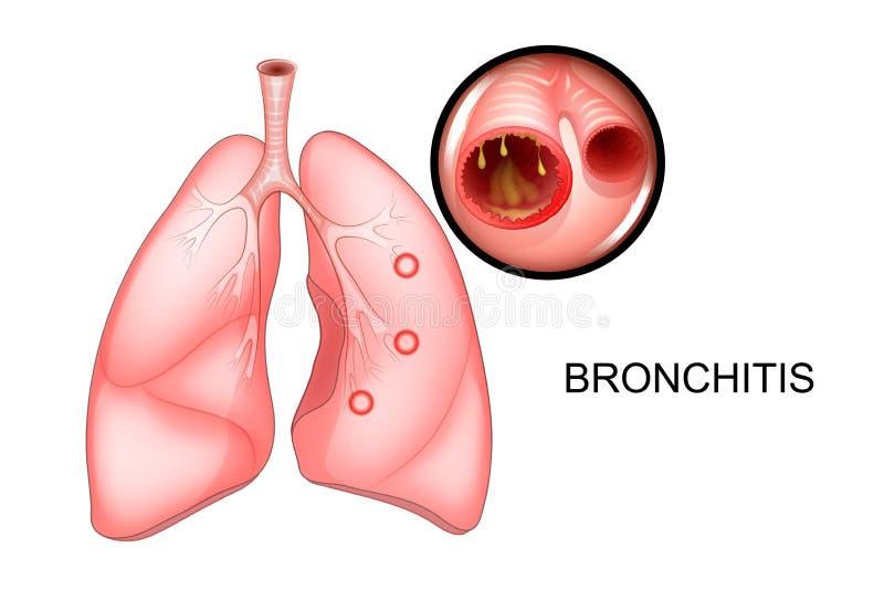 Die Lungen, beeinflußt mit Bronchitis stock abbildung