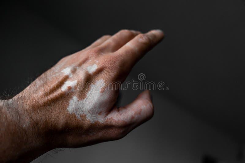Die männliche Hand wird durch Vitiligo beeinflußt gesundheit stockfoto