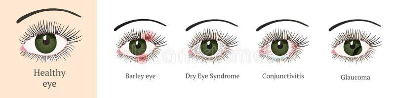 Die meisten allgemeinen Augenprobleme vektor abbildung