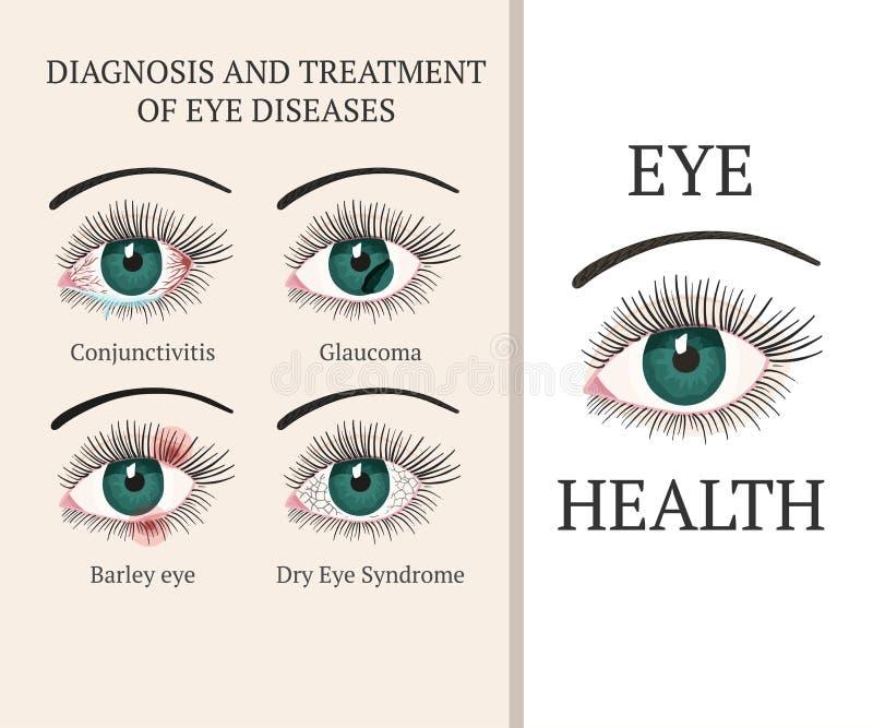 Die meisten allgemeinen Augenprobleme lizenzfreie abbildung