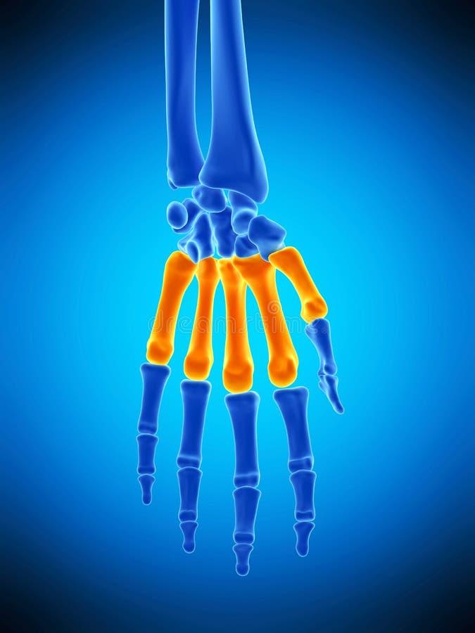 Die metacarpal Knochen stock abbildung. Illustration von metacarpal ...
