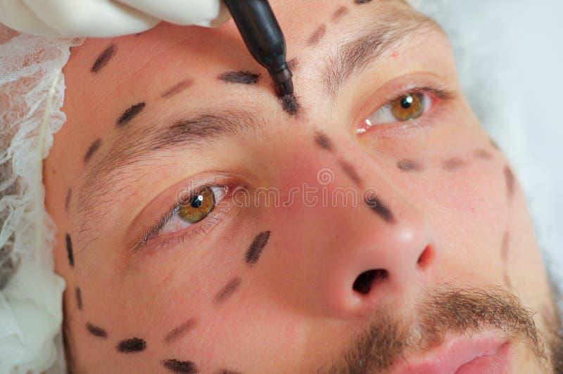 Die Nahaufnahme, die jung ist, bemannt das Gesicht, das für Schönheitschirurgie sich vorbereitet und erhält Linien gezeichnet auf lizenzfreie stockfotos