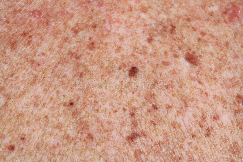 Die Oberfläche der Haut zurück die ältere alte Frau Viele Molen lizenzfreie stockfotos