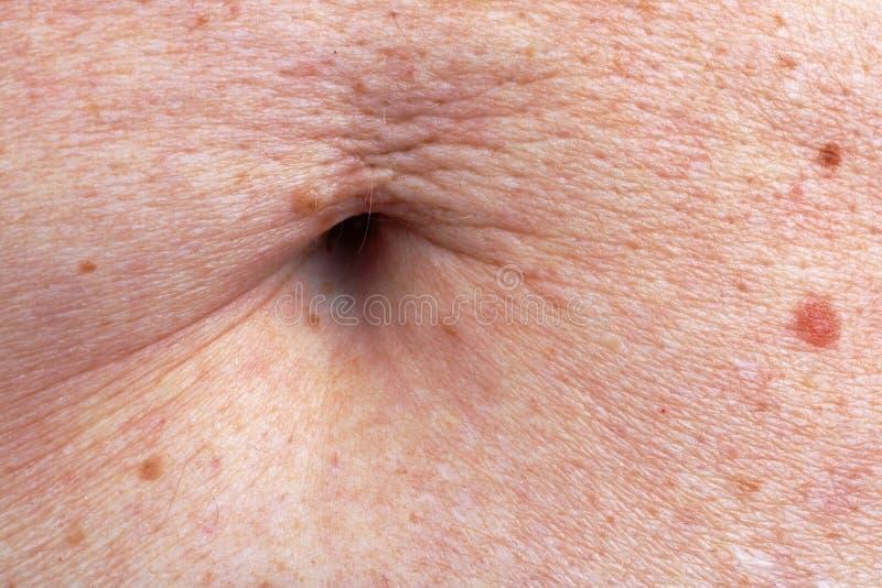Die Oberfläche der Magenhaut und des Nabels der älteren alten Frau Viele Molen stockbilder