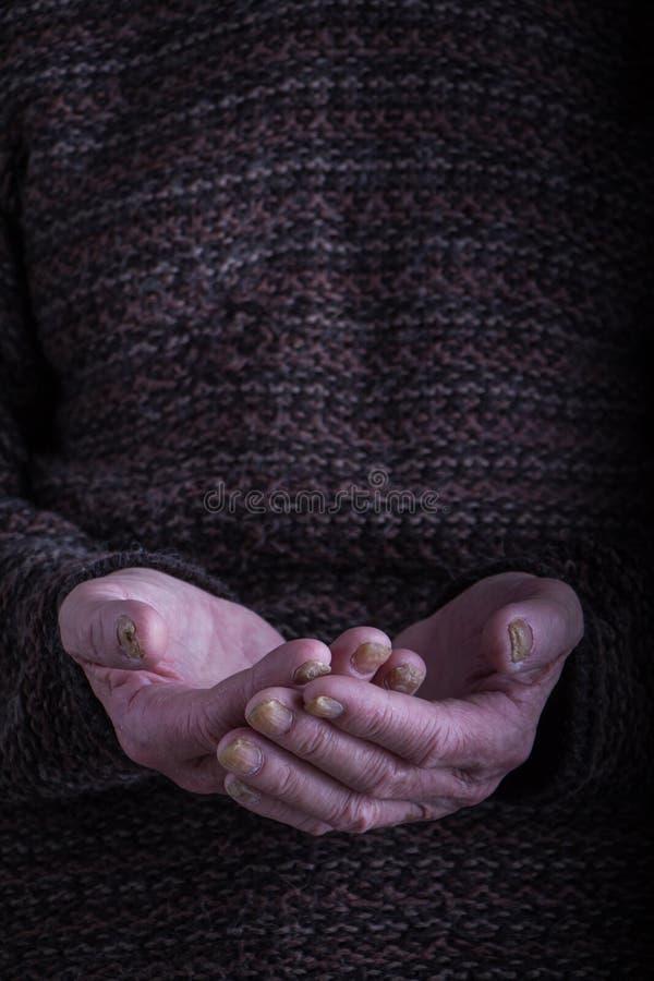 Die Palmen einer alten Person in einer dunklen, rauen Strickjacke werden zusammen, ein Konzept der Hilfe, Sorgfalt und Gesundheit lizenzfreies stockfoto