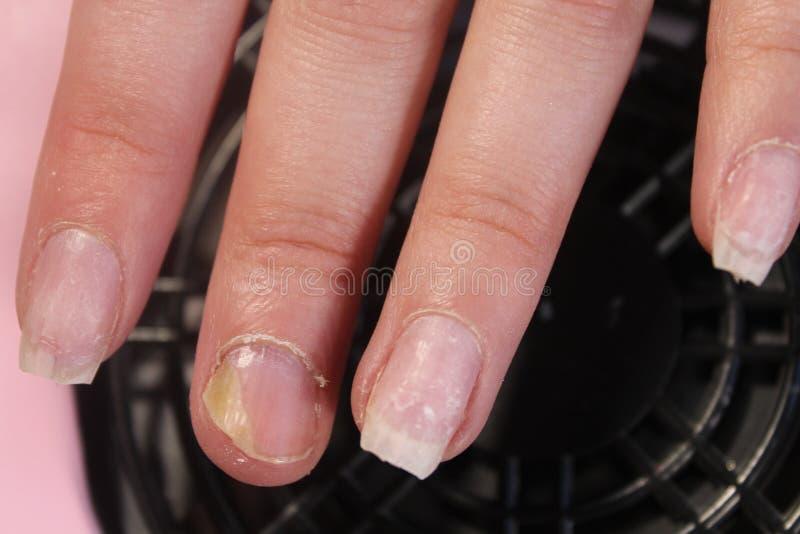 Die problematischen, schmerzlichen Nägel eines Mädchens lizenzfreie stockfotos
