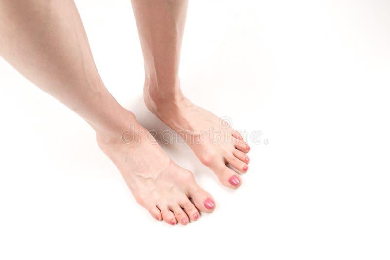Die weiblichen Beine mit flachen querfüßen und hervorstehenden Adern lizenzfreies stockfoto