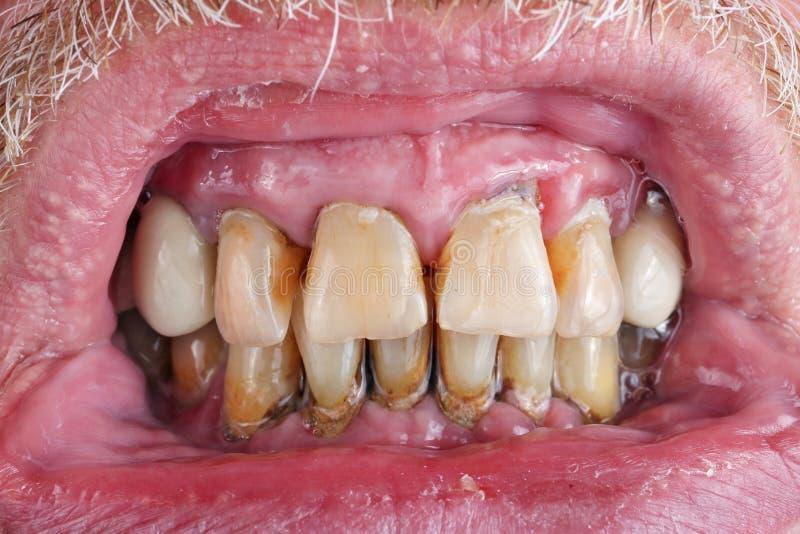 Die Zähne eines älteren Mannes werden durch Karies, Weinstein und PO verdorben stockfoto