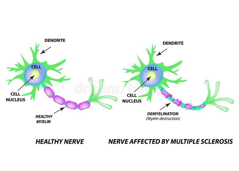 Die Zerst?rung der Myelinh?lle auf dem Neurit Sch?digender Myelin Neuron beeinflu?t durch multiple Sklerose Weltmehrfachverbindun lizenzfreie abbildung