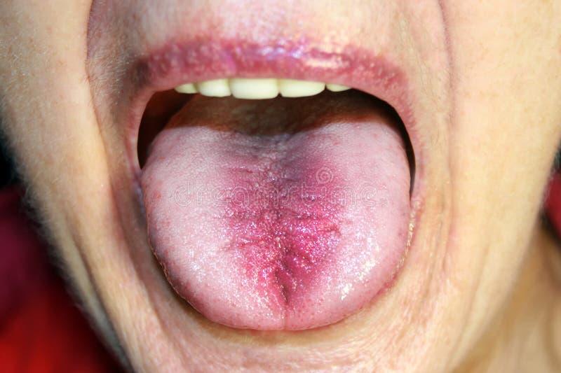 Die Zunge ist in einem weißen Überfall Candidiasis in der Zunge lizenzfreie stockfotografie