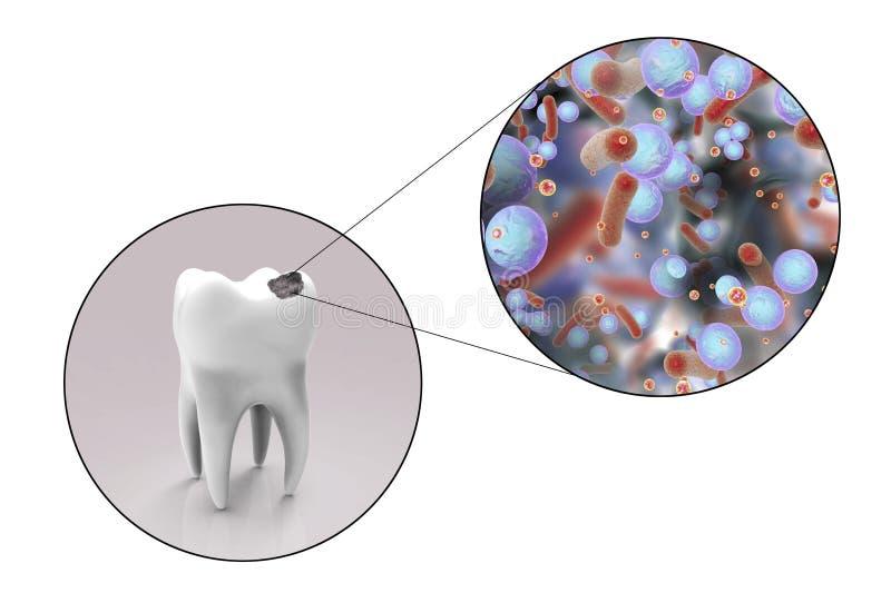 Diente con la carie dental ilustración del vector