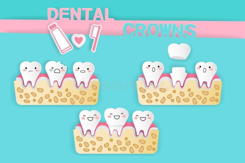 Diente con las coronas dentales ilustración del vector