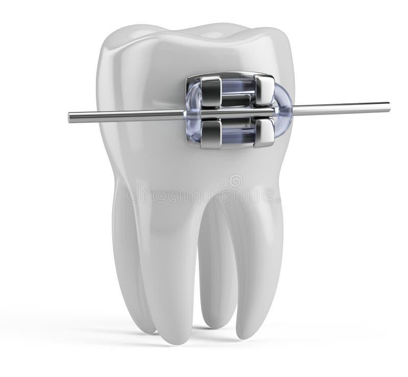 Diente con los apoyos aislados en blanco Icono del diente 3d Salud, doctor médico, de diente, clínica dental o símbolo del dentis stock de ilustración