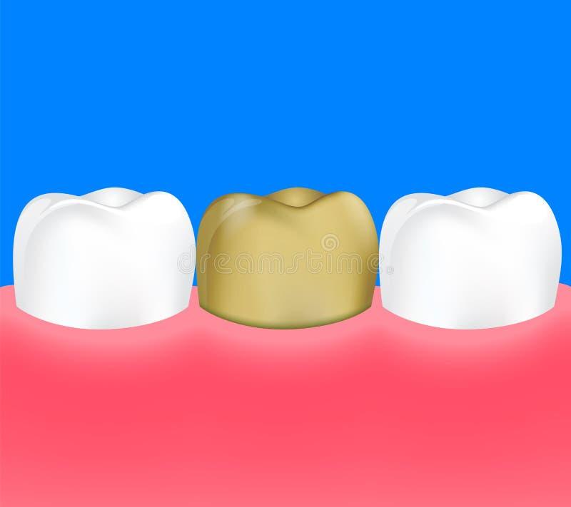 Diente de oro entre el diente sano stock de ilustración