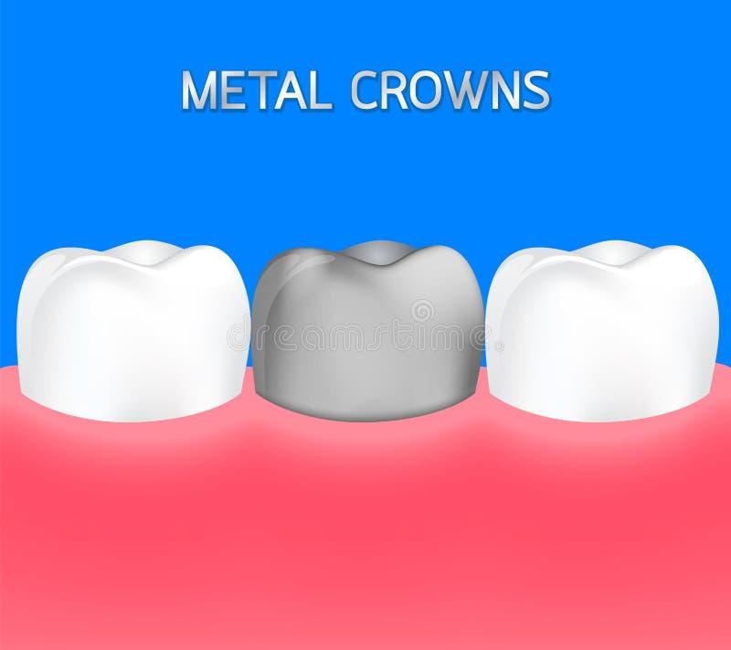 Diente de plata entre el diente sano stock de ilustración