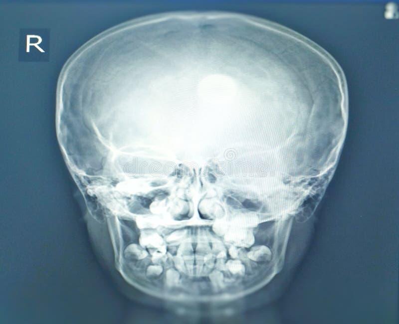 Diente del hallazgo de la radiograf?a de los sinos de Paranasal en sino maxilar derecho Ninguna sinusitis Ninguna destrucci?n o m imagen de archivo