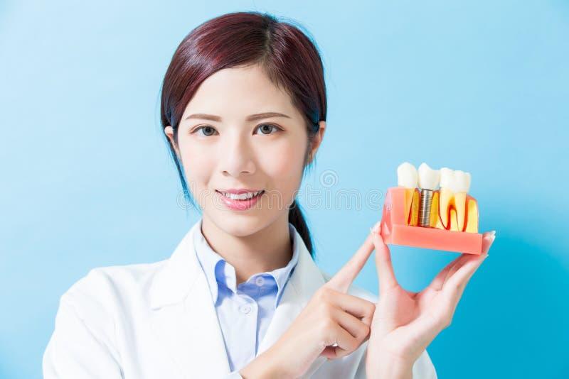 Diente del implante de la toma del dentista imágenes de archivo libres de regalías