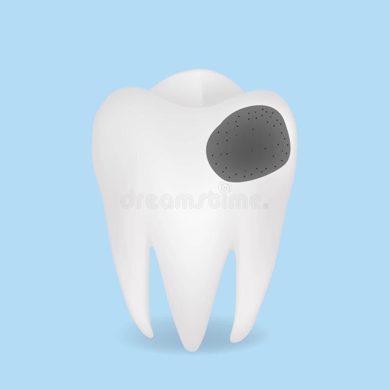 Diente enfermo realista del vector Decaiga y destruya el diente ilustración del vector