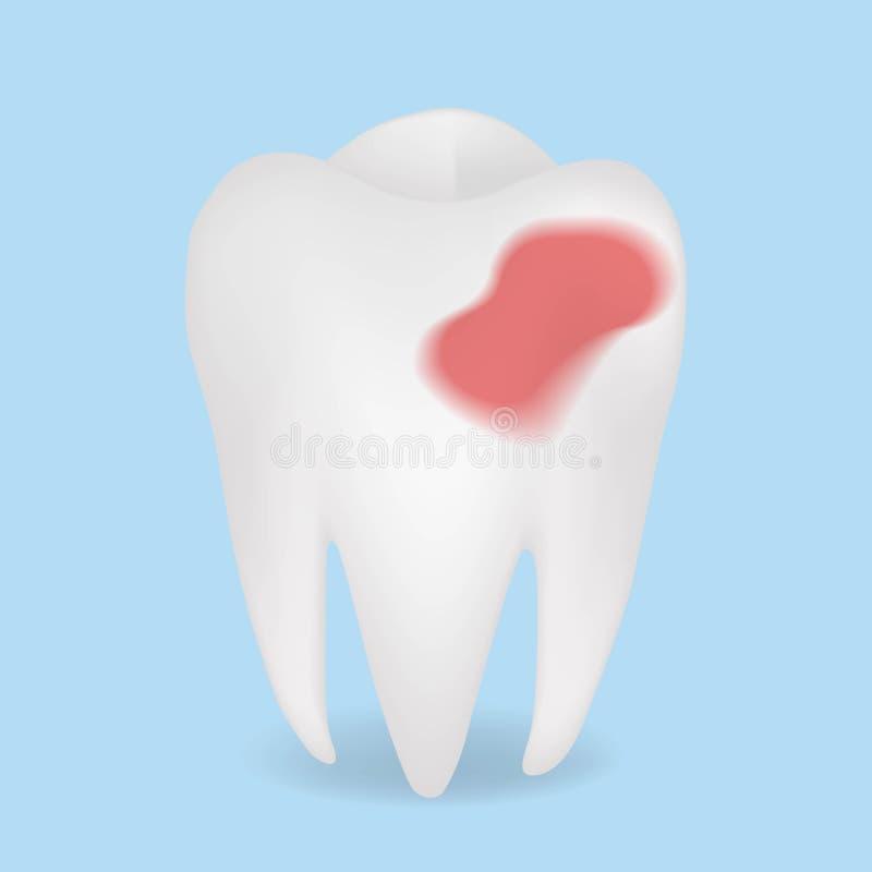 Diente enfermo rojo realista del vector destruya el diente ilustración del vector
