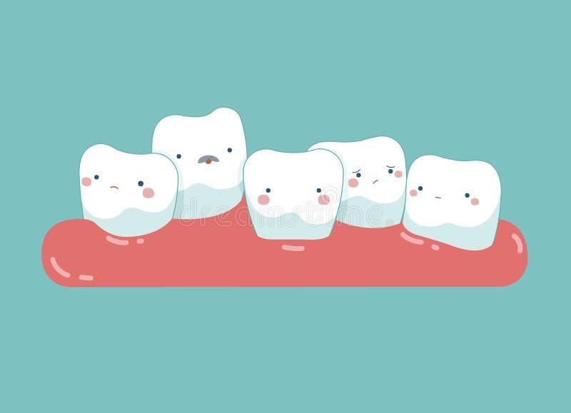 Diente que crece en frente o detrás de otro diente, dientes y concepto del diente de dental libre illustration