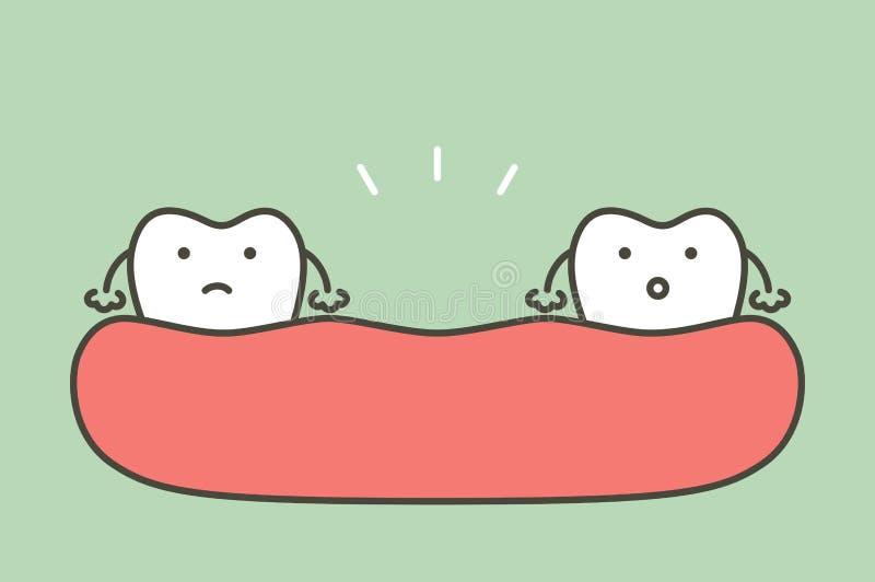 Diente que falta, espacio entre los dientes en boca libre illustration