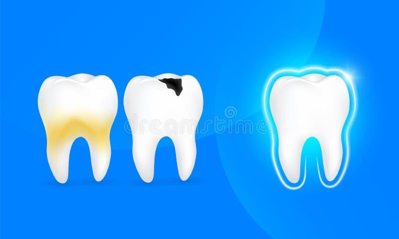 Diente sano, diente de decaimiento y diente con la placa libre illustration