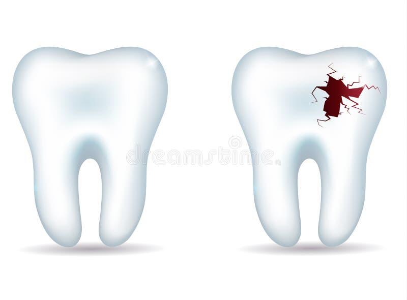 Diente sano y diente malsano stock de ilustración