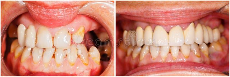Dientes antes y después del tratamiento imagen de archivo