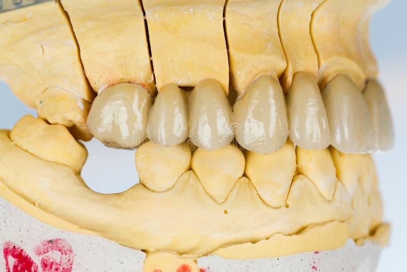 Dientes de la porcelana - puente dental fotos de archivo libres de regalías