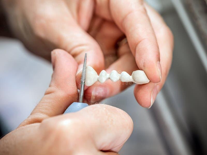Dientes del moldeado del técnico dental fotografía de archivo