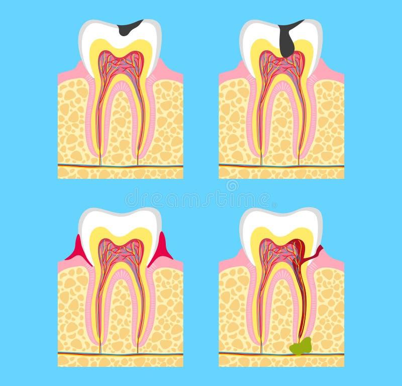Dientes enfermos - carie, enfermedad periodontal, pulpitis rama de la estomatología de la medicina patología de dientes libre illustration
