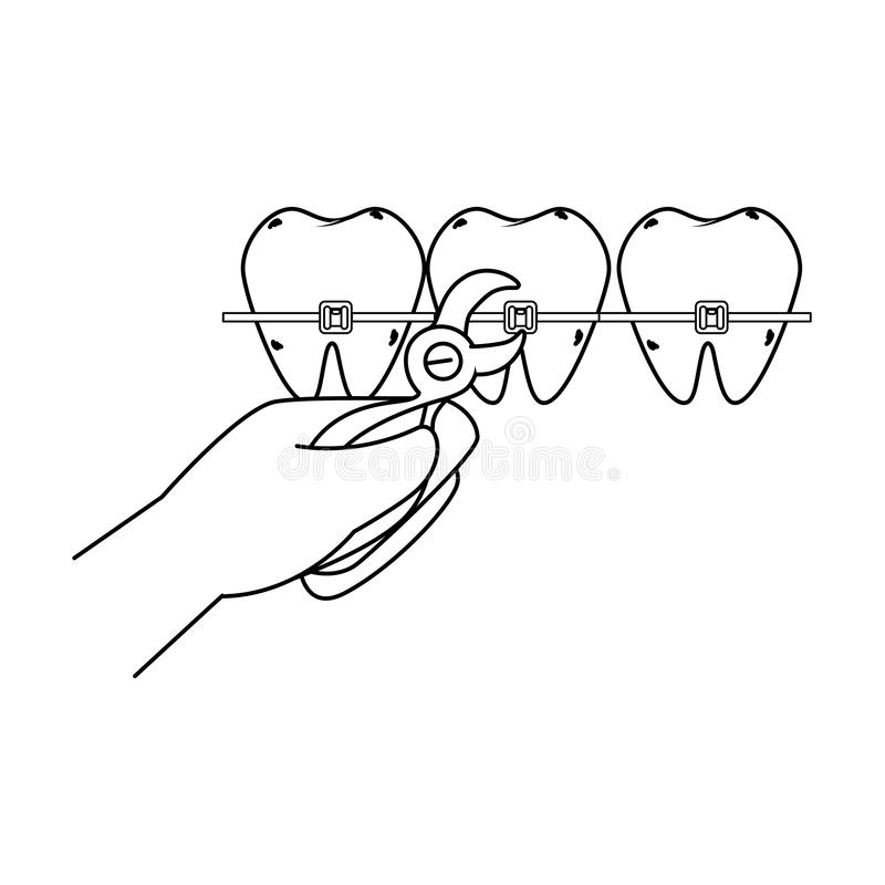 Dientes humanos con el orthodontist y los alicates de la mano ilustración del vector