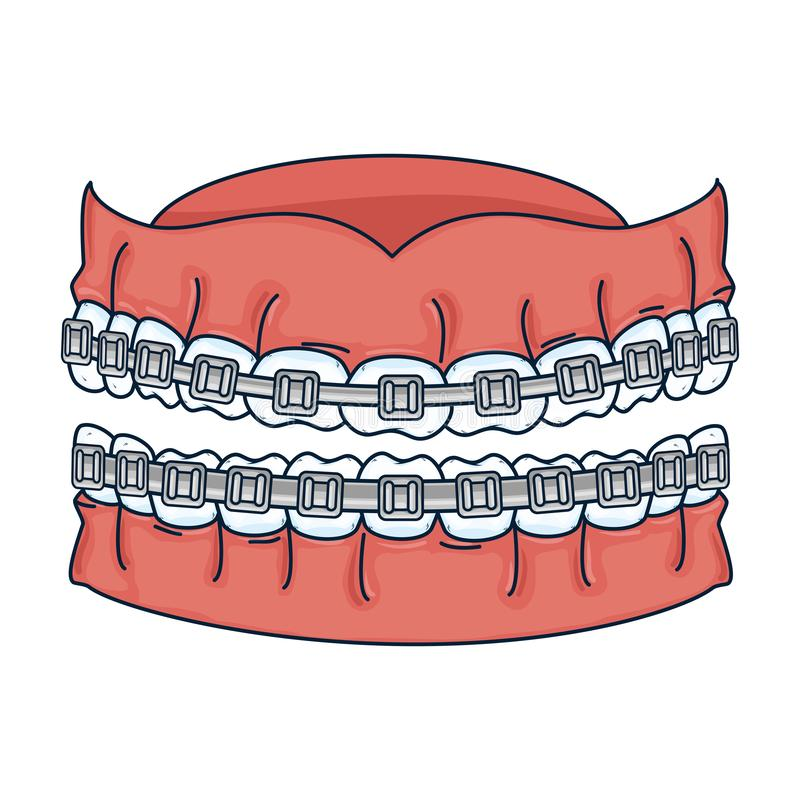 Dientes humanos con la ortodoncia ilustración del vector