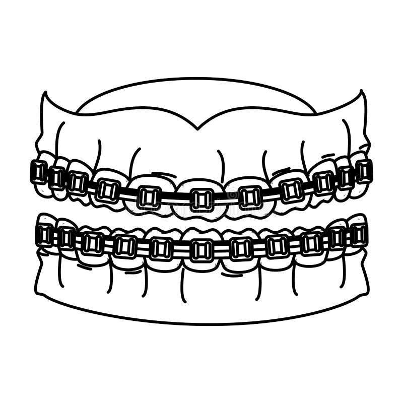 Dientes humanos con la ortodoncia libre illustration