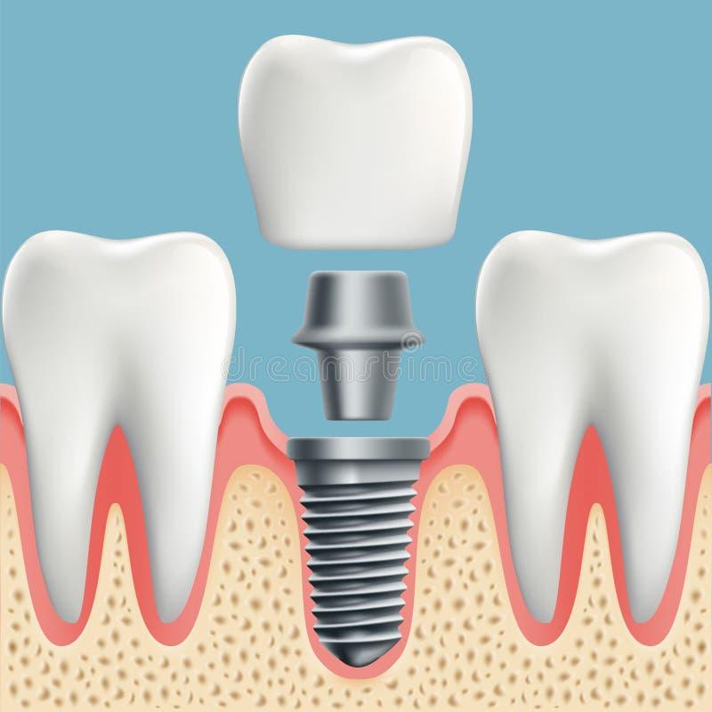 Dientes Humanos Y Implante Dental Stock de ilustración - Ilustración ...