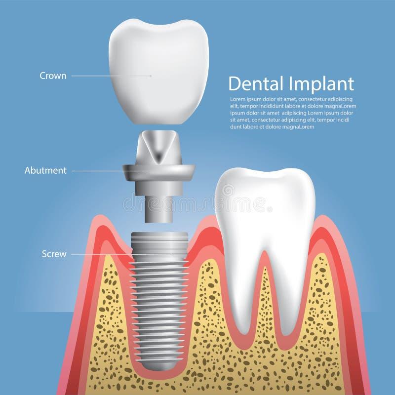 Dientes Humanos Y Implante Dental Ilustración del Vector ...