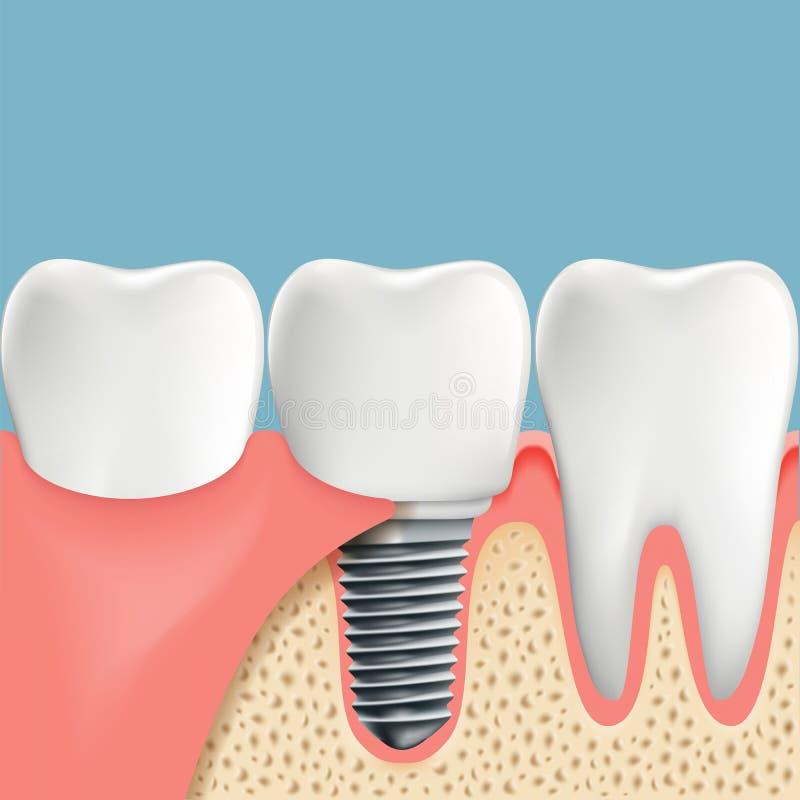 Dientes Humanos Y Implante Dental Anatomía De La Cavidad Bucal Stoc ...
