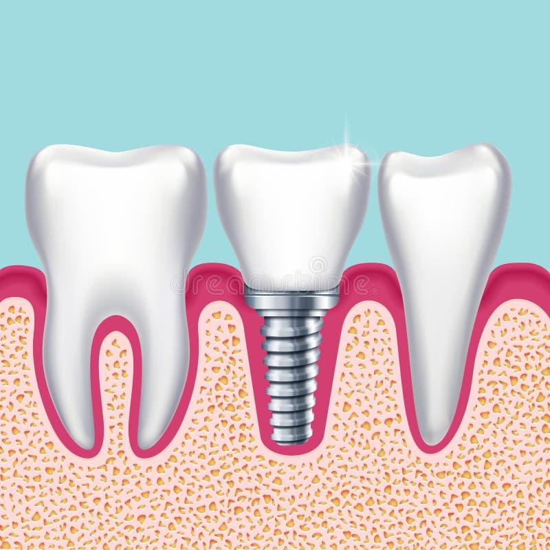 Dientes humanos y implante dental en el ejemplo médico del vector del orthodontist del mandíbula stock de ilustración