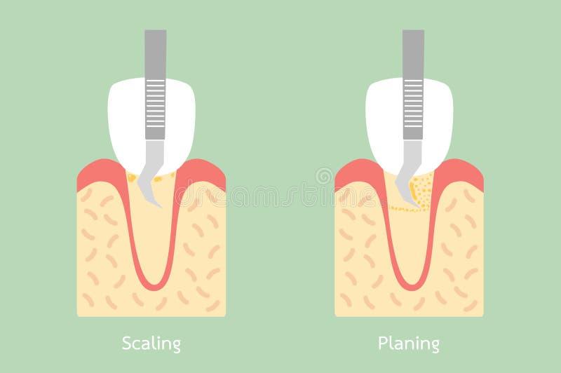 Dientes que escalan - retiro de la placa dental, estructura de la anatomía incluyendo el hueso y goma stock de ilustración
