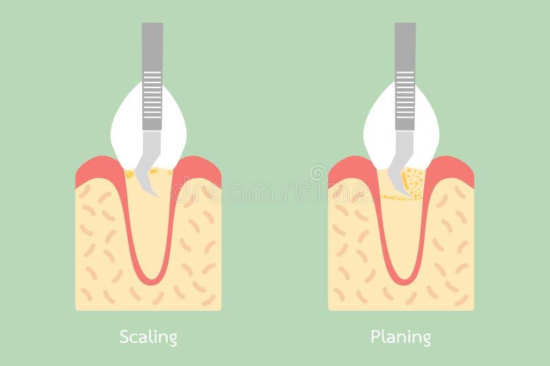 Dientes que escalan - retiro de la placa dental, estructura de la anatomía incluyendo el hueso y goma libre illustration