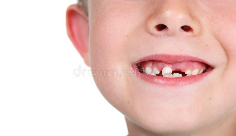 Dientes que falta sonrientes del muchacho imágenes de archivo libres de regalías