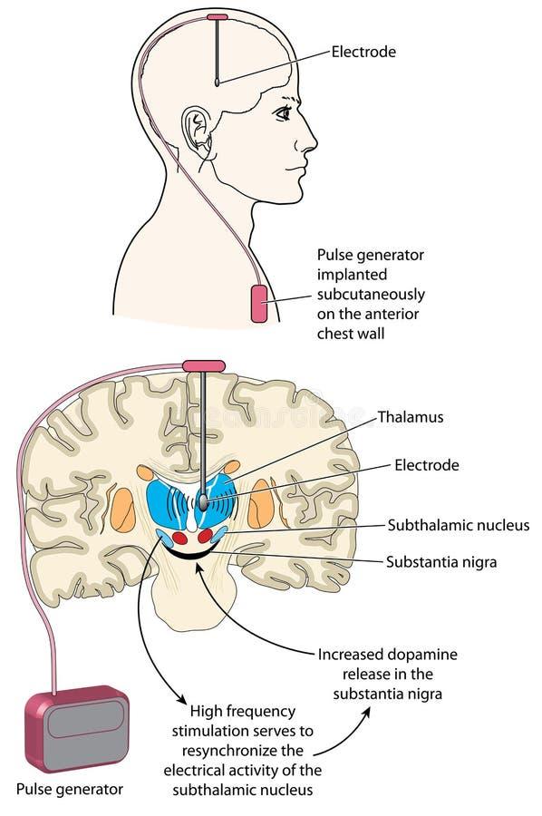 Diepe hersenenstimulatie royalty-vrije illustratie