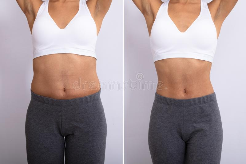 Before And After Diet Concept royalty free stock image