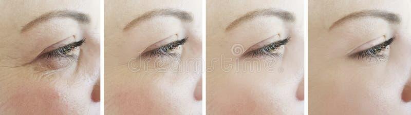 Diferença da colagem dos enrugamentos dos olhos da mulher antes após o tratamento imagem de stock